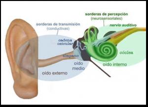 Hipoacusia1